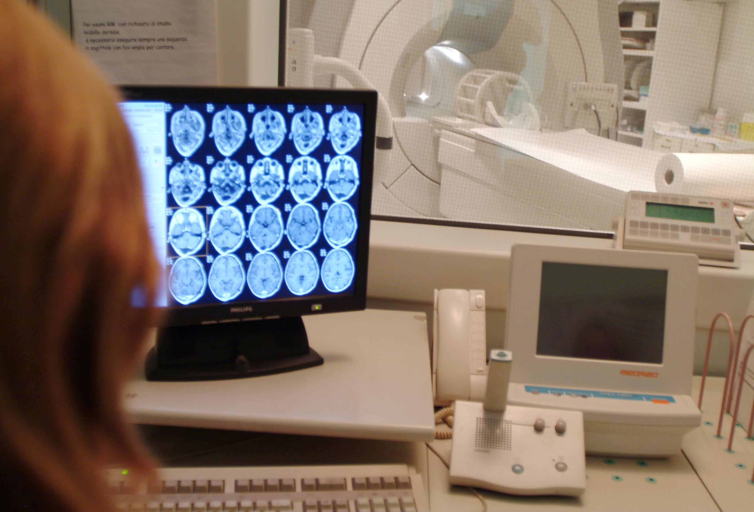 Istituto besta nasce centro per formare neurochirurghi cronaca